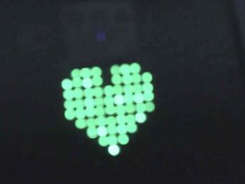 Scoperta molecola 'freno' dell'infarto, nuova speranza per prevenirlo