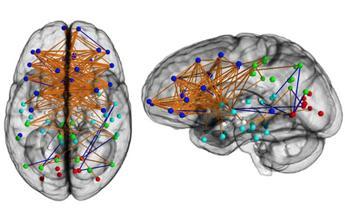 Farmaco contro l'asma 'ringiovanisce' cervello, la scoperta di uno studio italiano