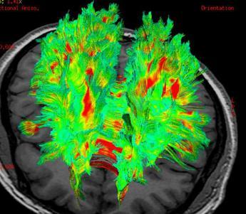 Scienziati italiani svelano il meccanismo di crescita delle cellule del cancro al cervello