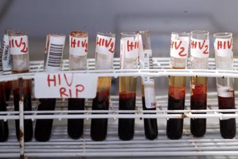 Aids, in arrivo super cure anche per l'Hiv