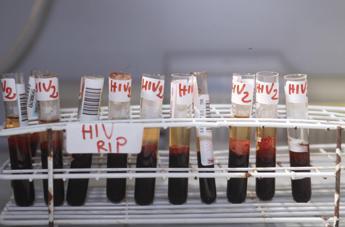 Aids, vero e falso