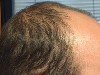 Calvizie, ecco il gene che fa cadere i capelli