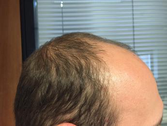 Potere della calvizie: uomini senza capelli giudicati più intelligenti e onesti