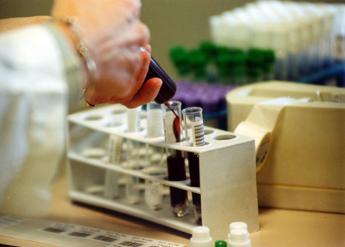 Gb, 2400 morti per sangue infetto