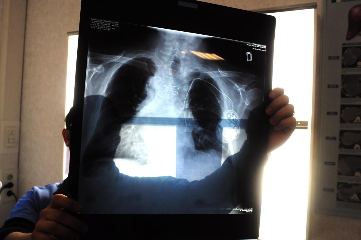 Con Covid necessaria riorganizzazione cure del cancro al polmone