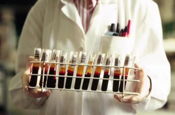 Nuova terapia genica per beta talassemia, stop trasfusioni