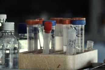 Aids, ogni 2 minuti un adolescente contagiato