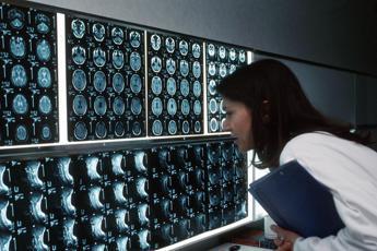 Misteriosi casi Covid-like con polmonite e tampone negativo