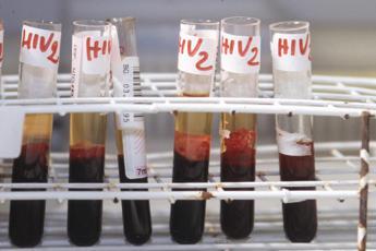Infettata da Hiv in laboratorio, studentessa fa causa a 2 atenei