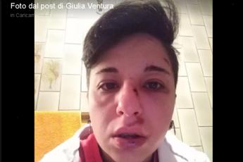 Pestata a Potenza perché lesbica, le foto choc